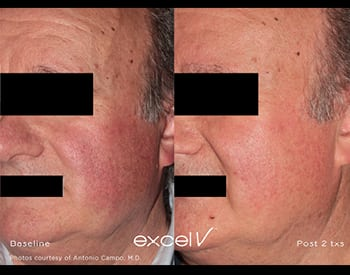 excel V™ Laser | Valley Skin Institute