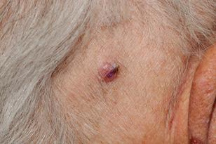 Skin Cancer Symptoms
