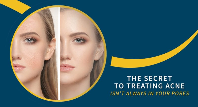 How to Treat Teenage Acne