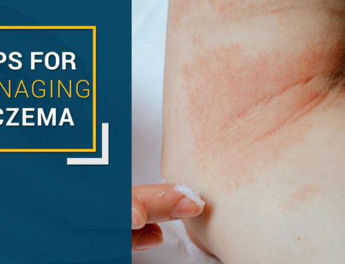 Learn 6 Simple and Effective Tips for Managing Eczema