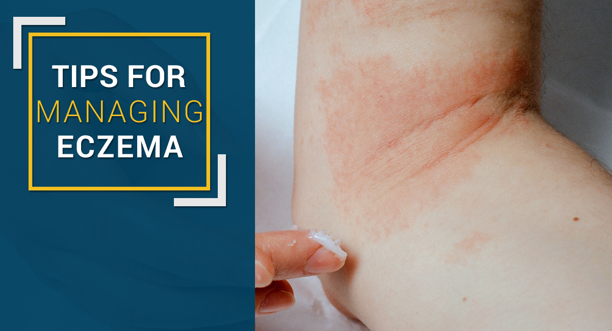 Tips for managing eczema new
