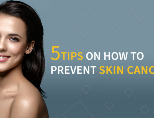 5 Tips on How to Prevent Skin Cancer