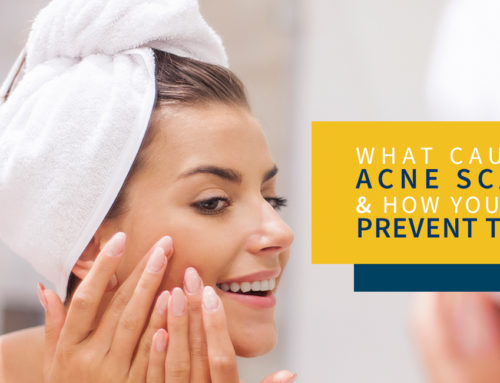 What Causes Acne Scars and How You Can Prevent Them